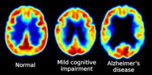 FDG-PET_brain_scan-normal-MCI-Alzheimers